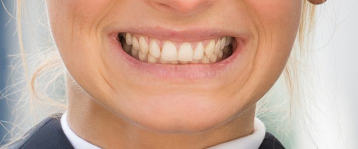 What You Should Know About Teeth Grinding